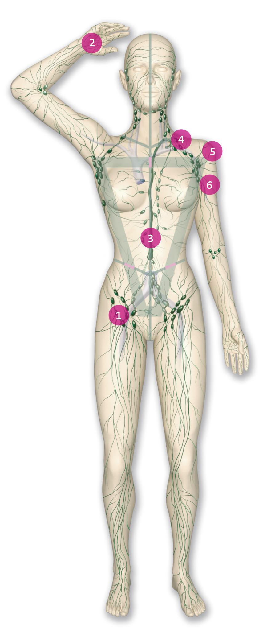 Das Lymphgefäßsystem - Lymphteam